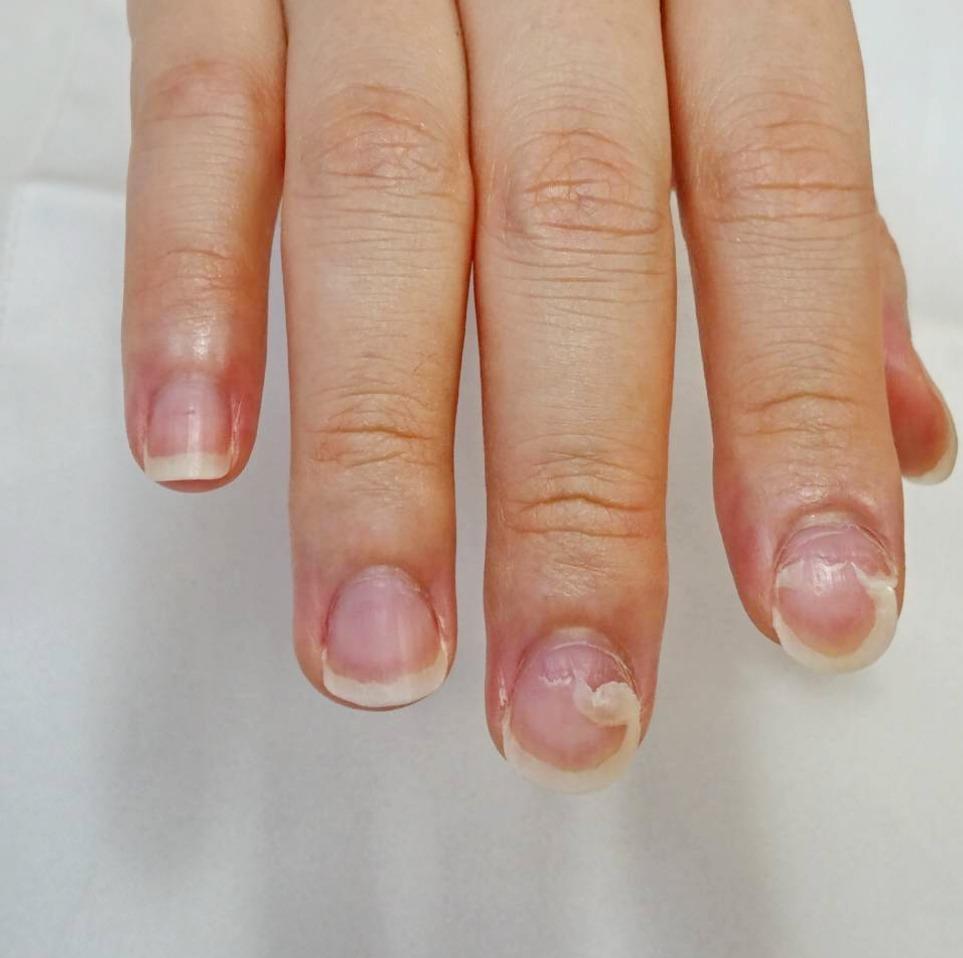 口 病 が 剥がれる 爪 手足